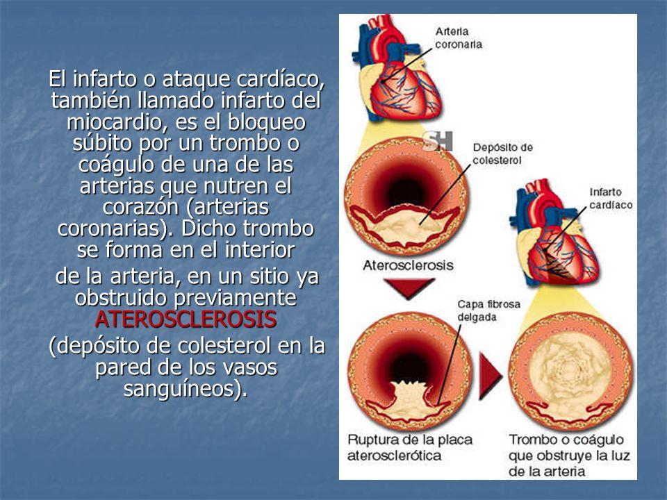 de la arteria, en un sitio ya obstruido previamente ATEROSCLEROSIS