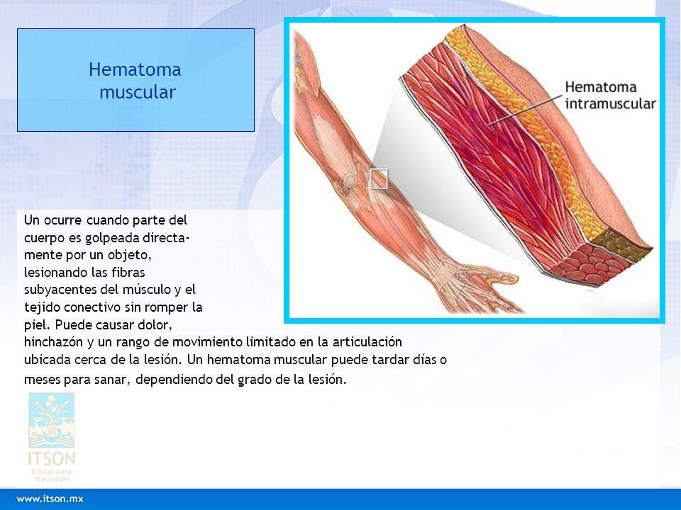 Hematoma muscular Un ocurre cuando parte del