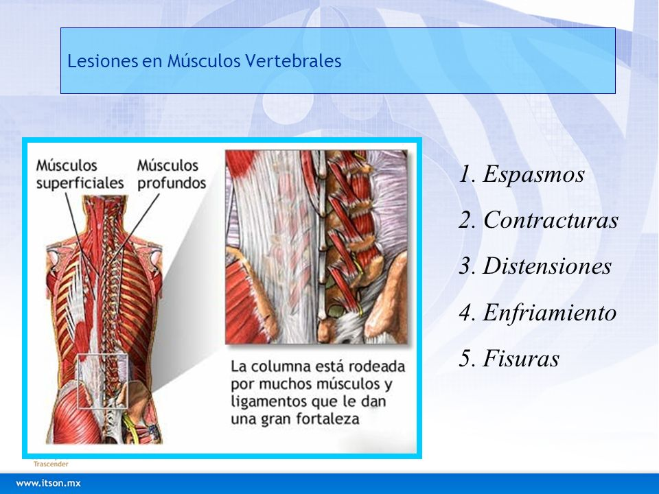 Lesiones en Músculos Vertebrales