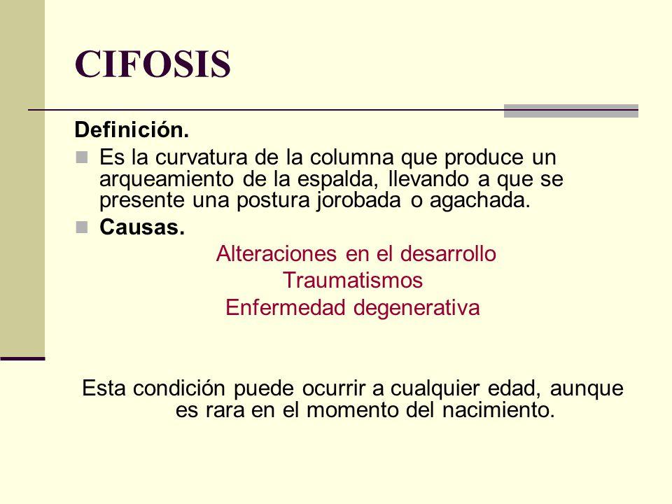 CIFOSIS Definición.