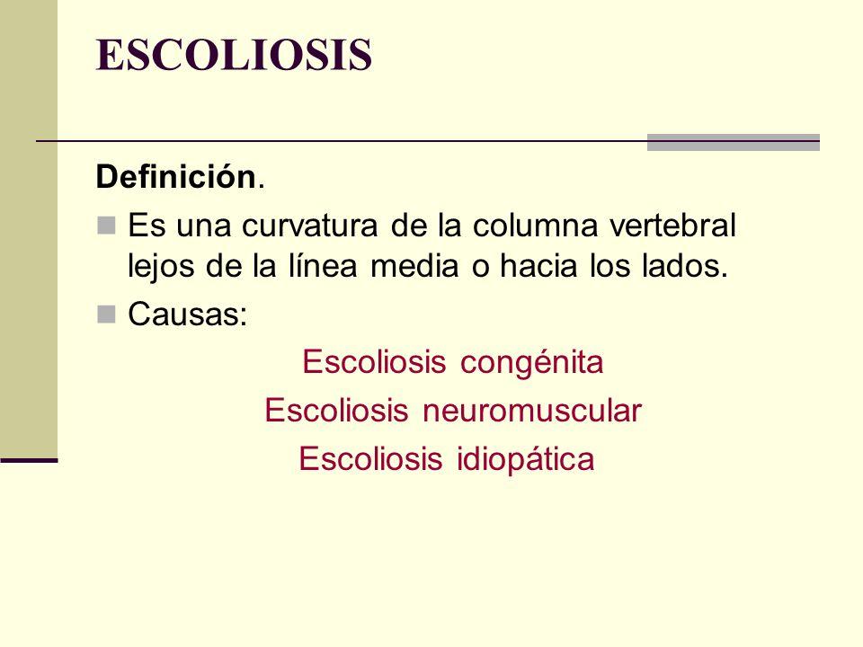 ESCOLIOSIS Definición.