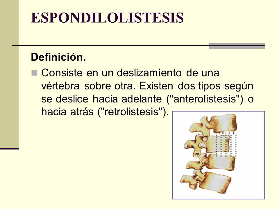 ESPONDILOLISTESIS Definición.