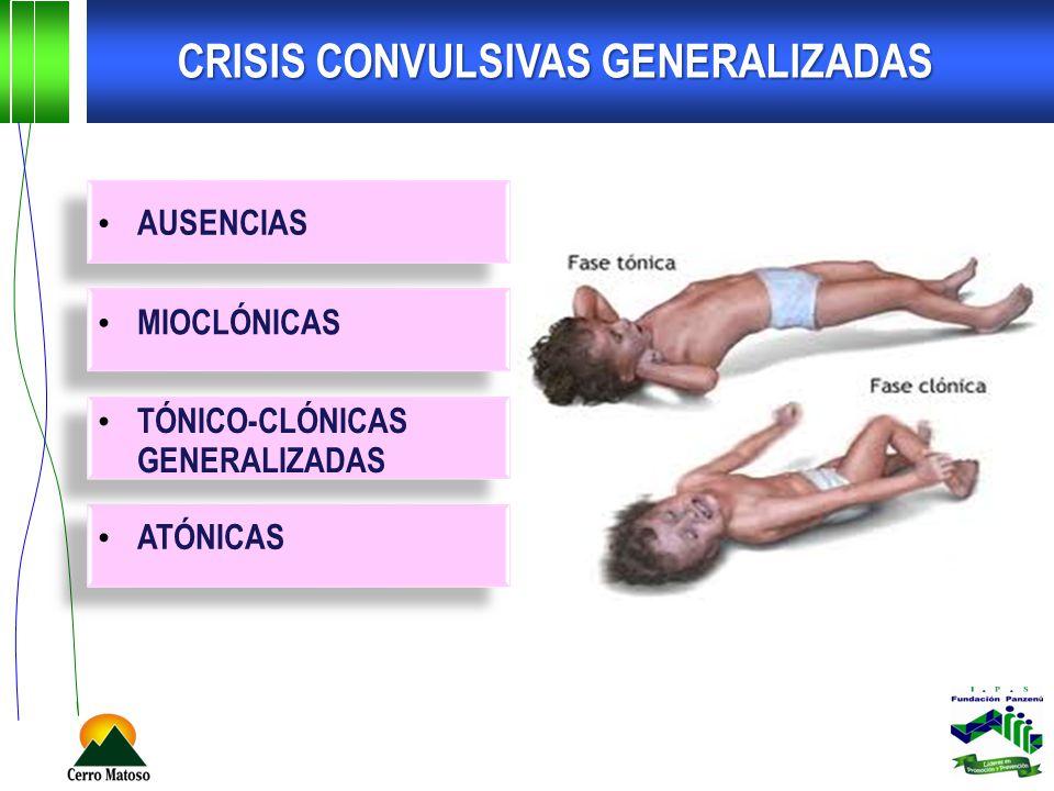 CRISIS CONVULSIVAS GENERALIZADAS