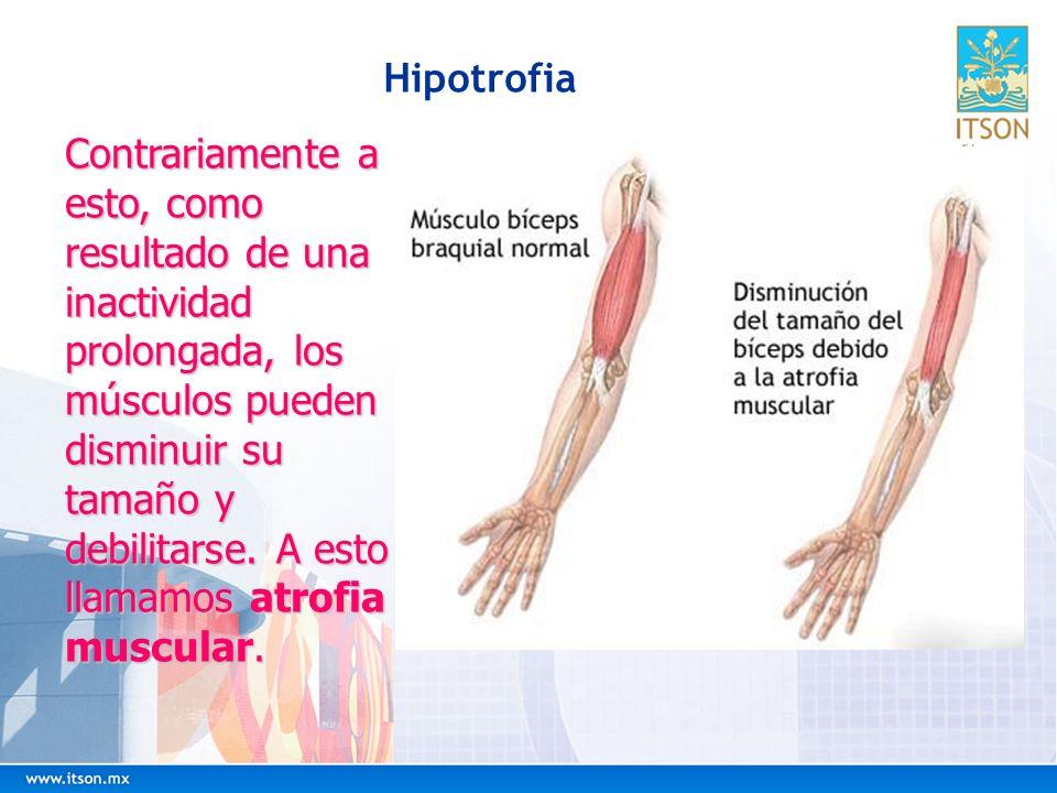 Hipotrofia