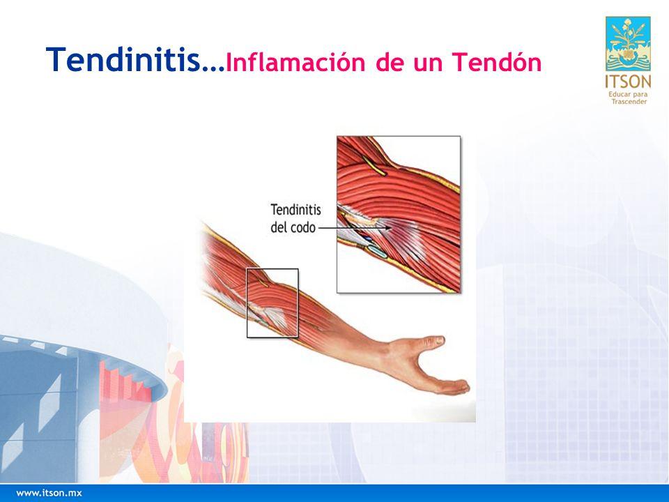 Tendinitis…Inflamación de un Tendón