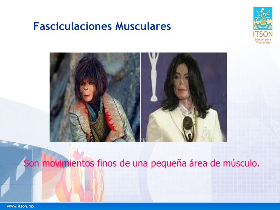 Fasciculaciones Musculares