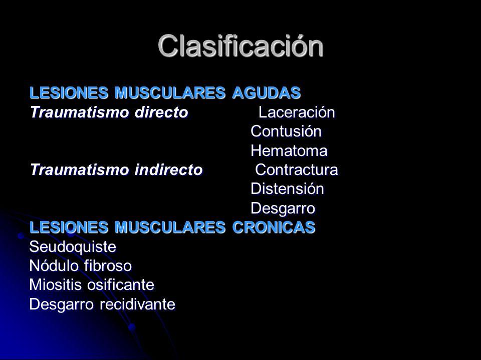Clasificación LESIONES MUSCULARES AGUDAS