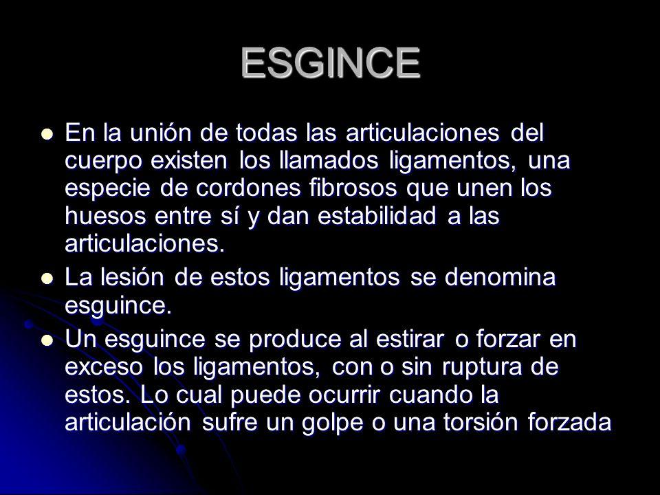 ESGINCE