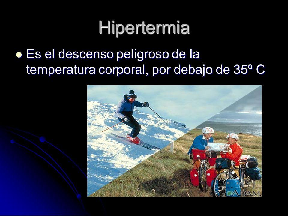 Hipertermia Es el descenso peligroso de la temperatura corporal, por debajo de 35º C