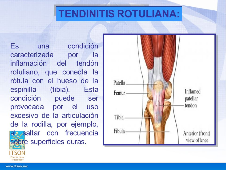 TENDINITIS ROTULIANA: