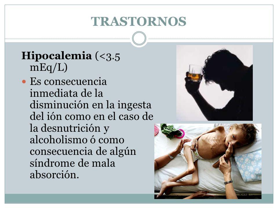 TRASTORNOS Hipocalemia (<3.5 mEq/L)