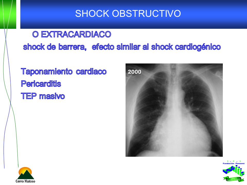 SHOCK OBSTRUCTIVO O EXTRACARDIACO