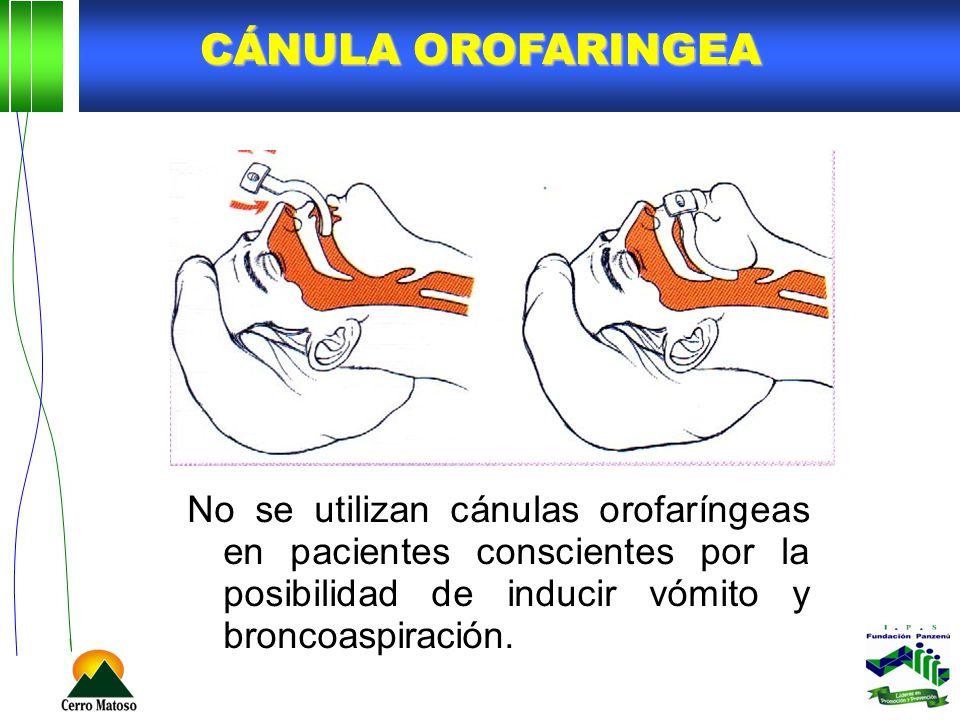Cánula orofaringea No se utilizan cánulas orofaríngeas en pacientes conscientes por la posibilidad de inducir vómito y broncoaspiración.