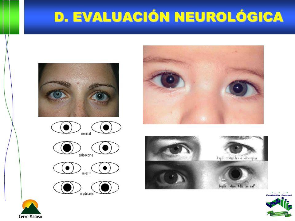 D. Evaluación neurológica