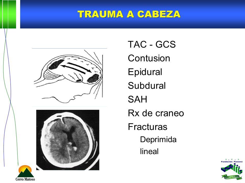 Trauma a cabeza TAC - GCS Contusion Epidural Subdural SAH Rx de craneo