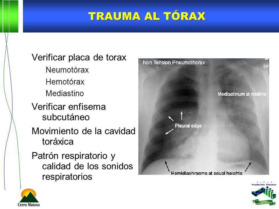 Trauma al tórax Verificar placa de torax Verificar enfisema subcutáneo