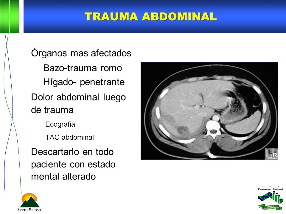 Trauma abdominal Órganos mas afectados Bazo-trauma romo