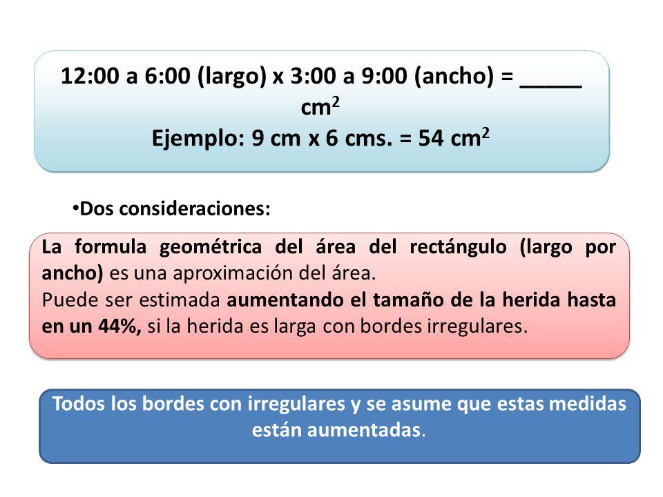 12:00 a 6:00 (largo) x 3:00 a 9:00 (ancho) = _____ cm2