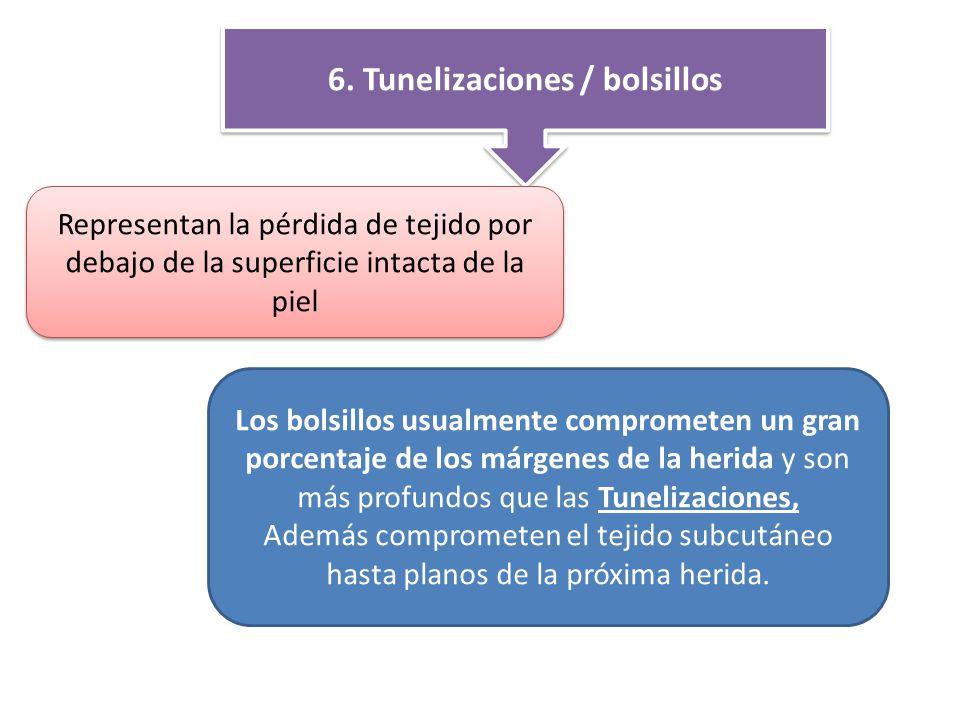 6. Tunelizaciones / bolsillos
