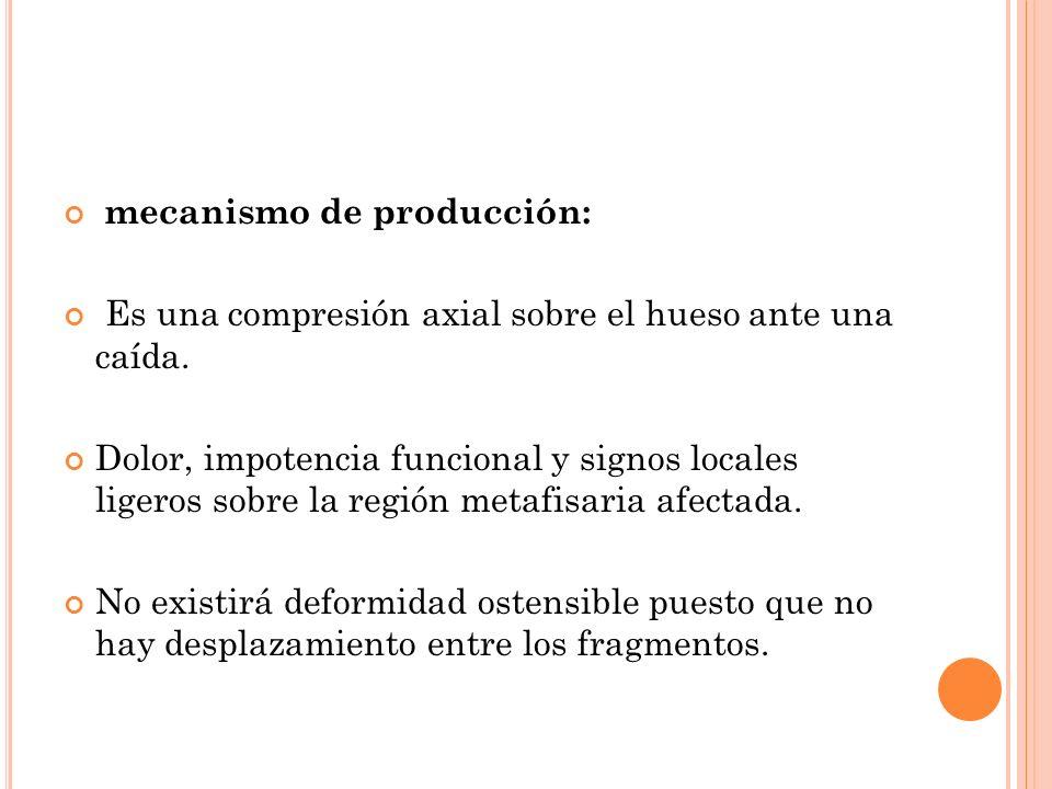 mecanismo de producción: