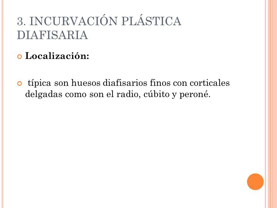 3. INCURVACIÓN PLÁSTICA DIAFISARIA