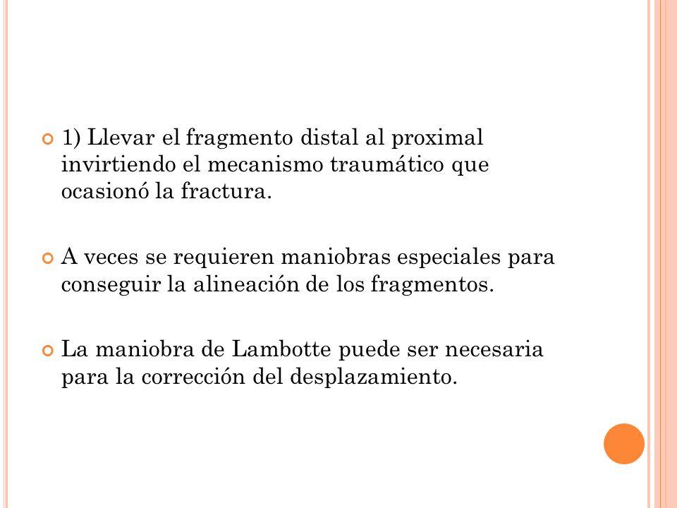 1) Llevar el fragmento distal al proximal invirtiendo el mecanismo traumático que ocasionó la fractura.