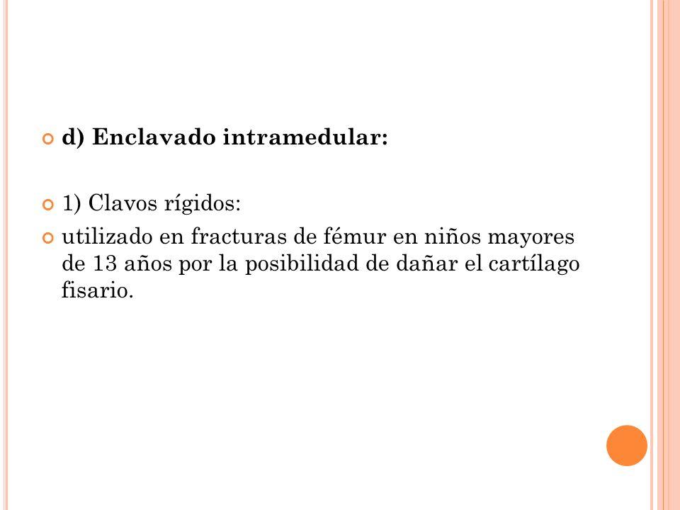 d) Enclavado intramedular: