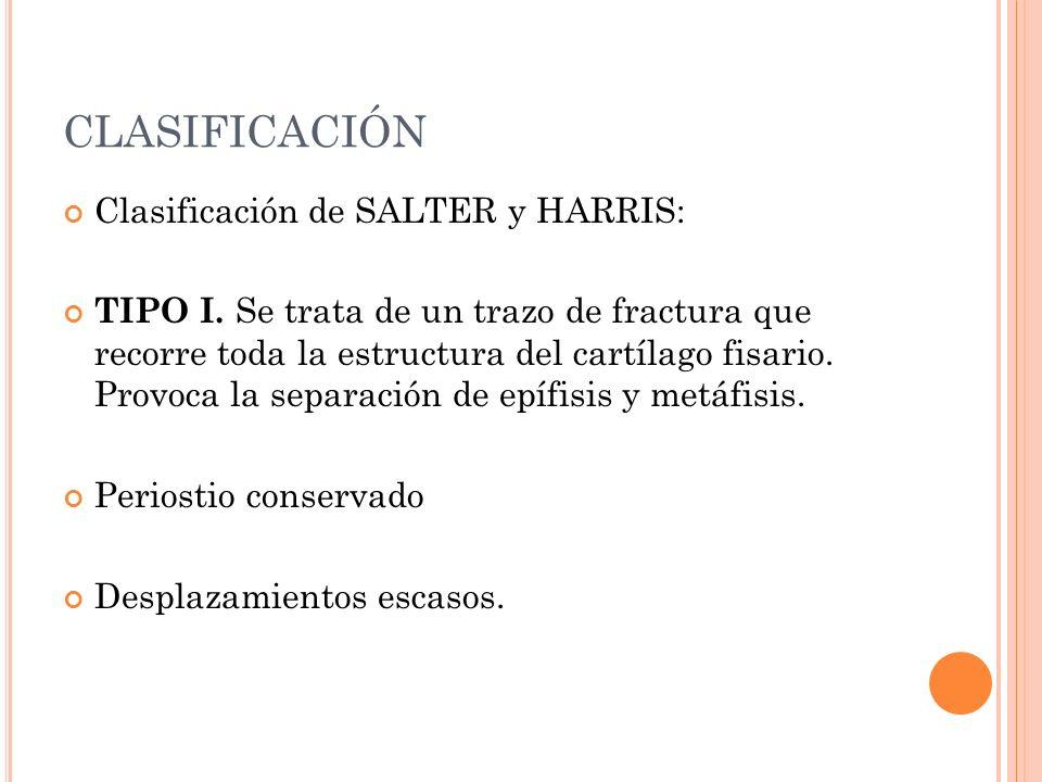 CLASIFICACIÓN Clasificación de SALTER y HARRIS:
