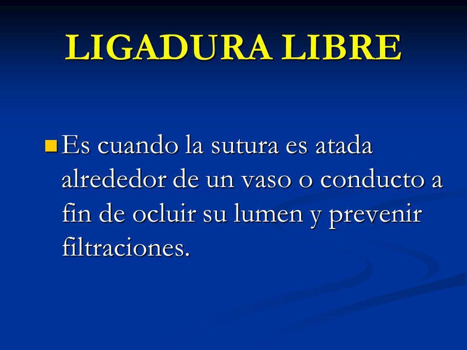 LIGADURA LIBRE Es cuando la sutura es atada alrededor de un vaso o conducto a fin de ocluir su lumen y prevenir filtraciones.