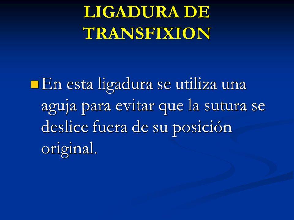 LIGADURA DE TRANSFIXION