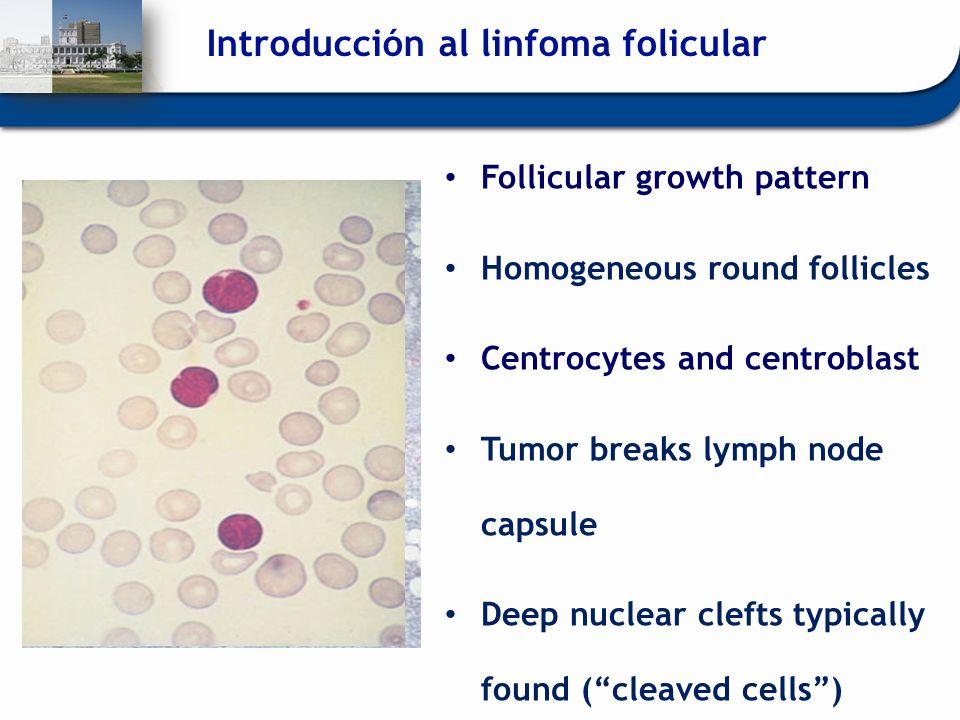 Introducción al linfoma folicular