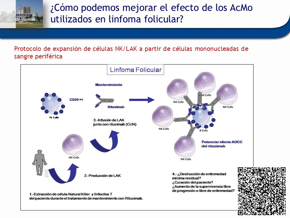 ¿Cómo podemos mejorar el efecto de los AcMo utilizados en linfoma folicular