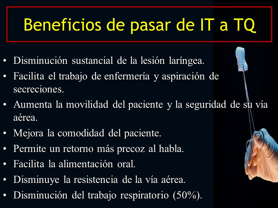 Beneficios de pasar de IT a TQ