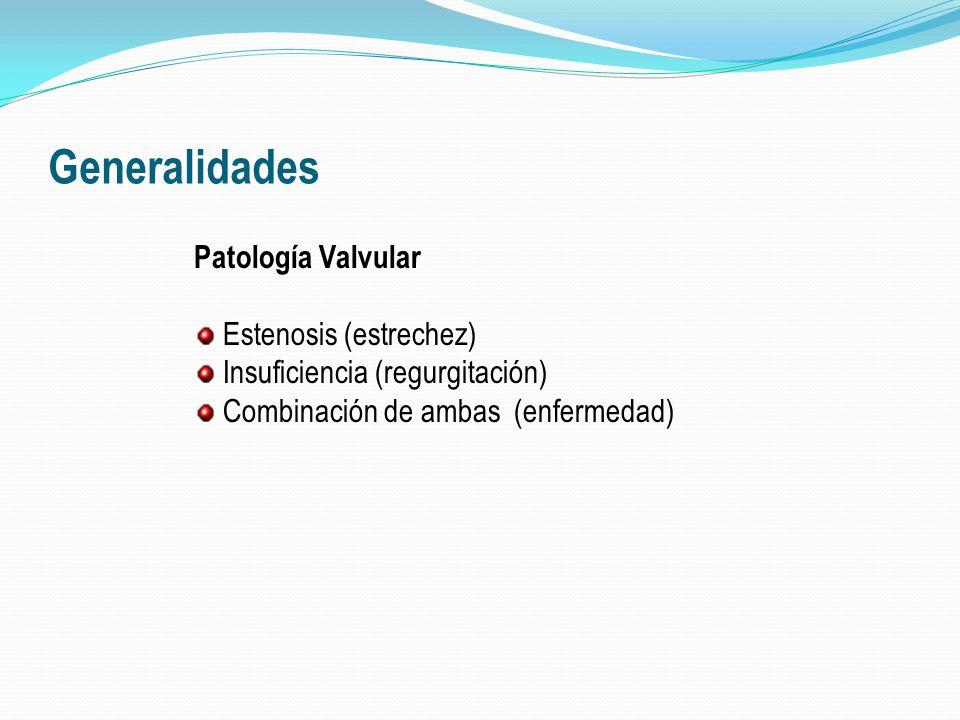 Generalidades Patología Valvular Estenosis (estrechez)