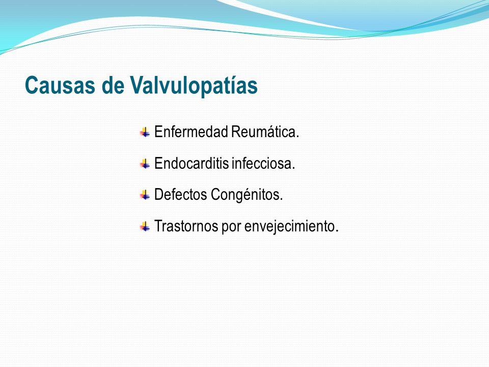 Causas de Valvulopatías