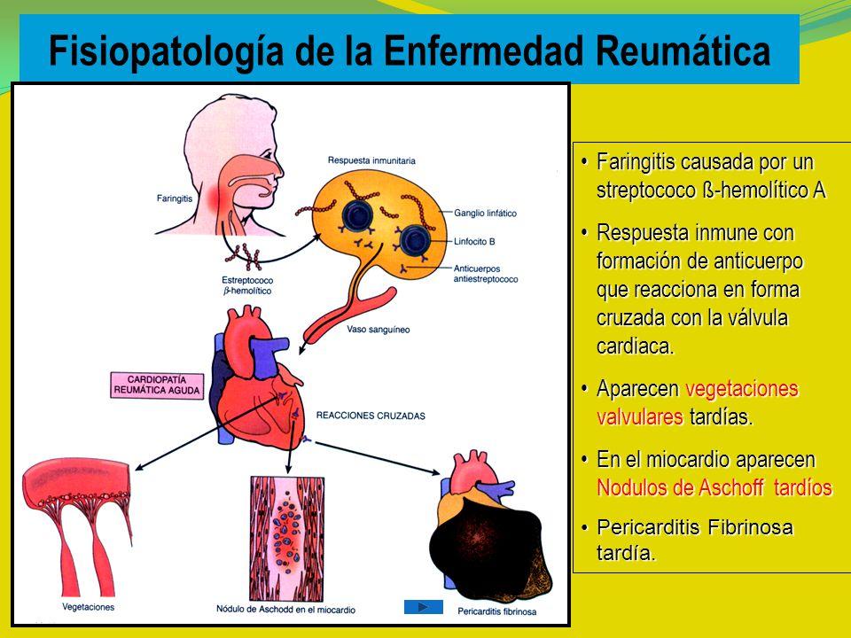 Fisiopatología de la Enfermedad Reumática