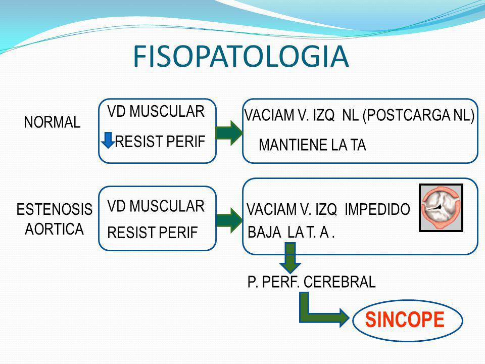 FISOPATOLOGIA SINCOPE VD MUSCULAR VACIAM V. IZQ NL (POSTCARGA NL)