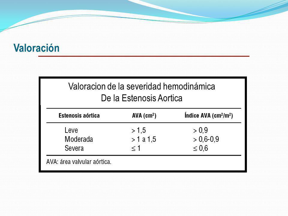 Valoración Valoracion de la severidad hemodinámica
