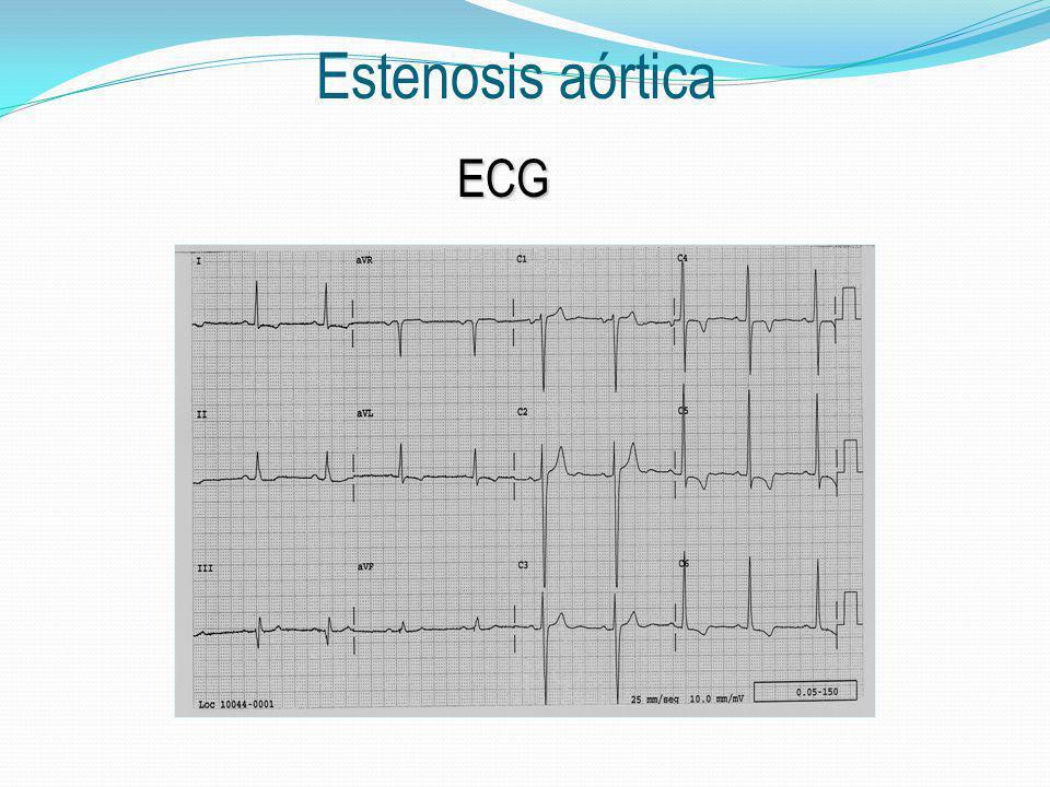 Estenosis aórtica ECG