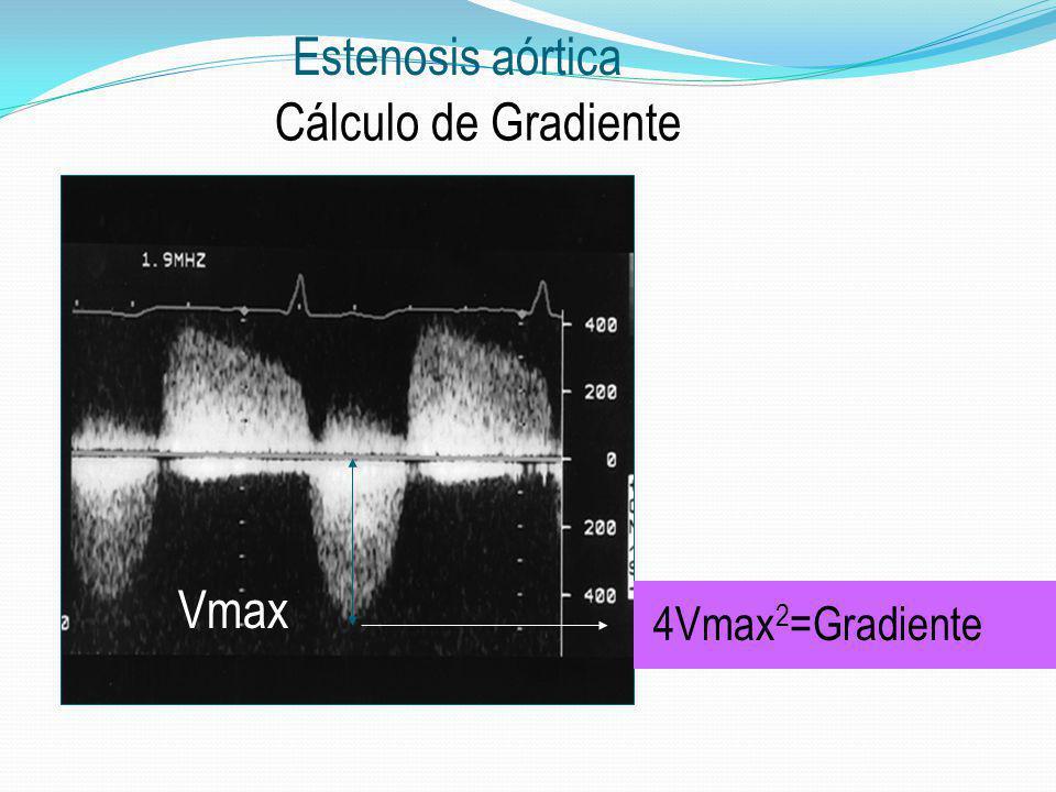Estenosis aórtica Cálculo de Gradiente Vmax 4Vmax2=Gradiente