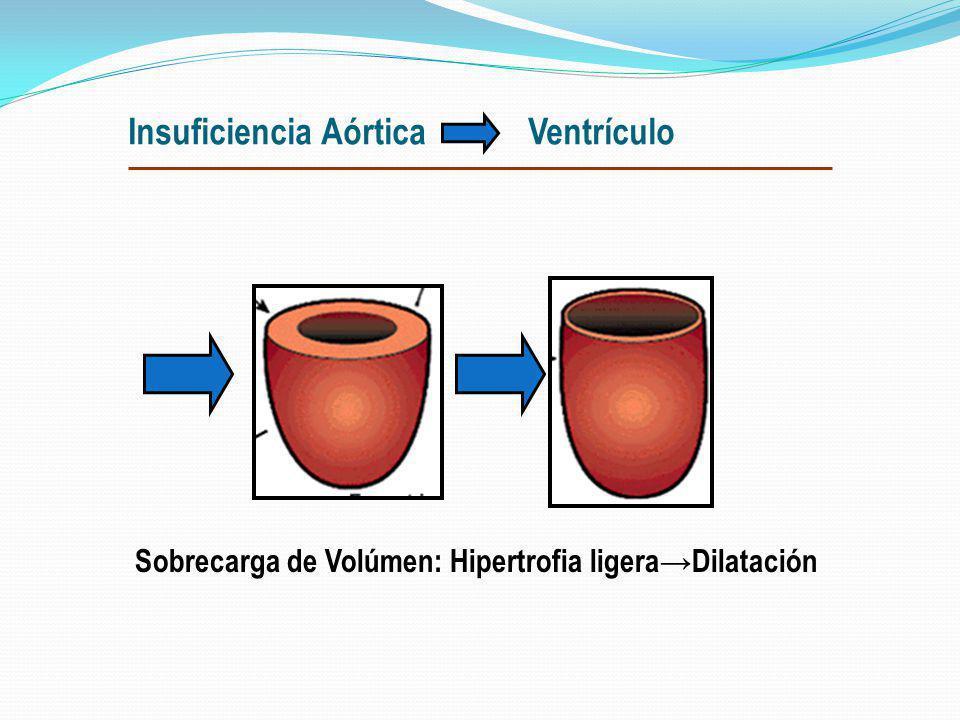Insuficiencia Aórtica Ventrículo