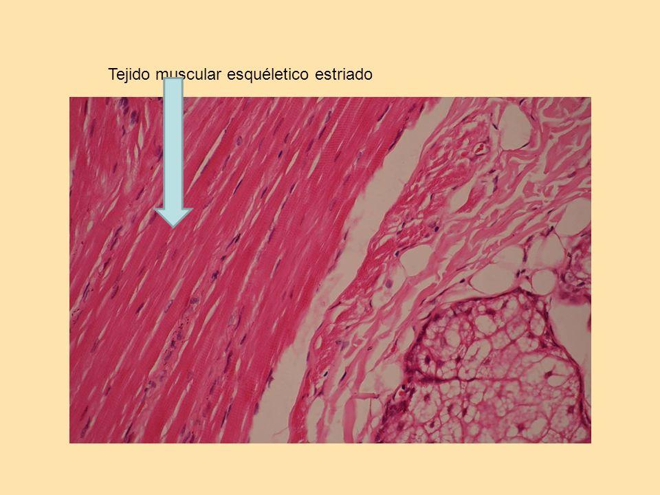Tejido muscular esquéletico estriado