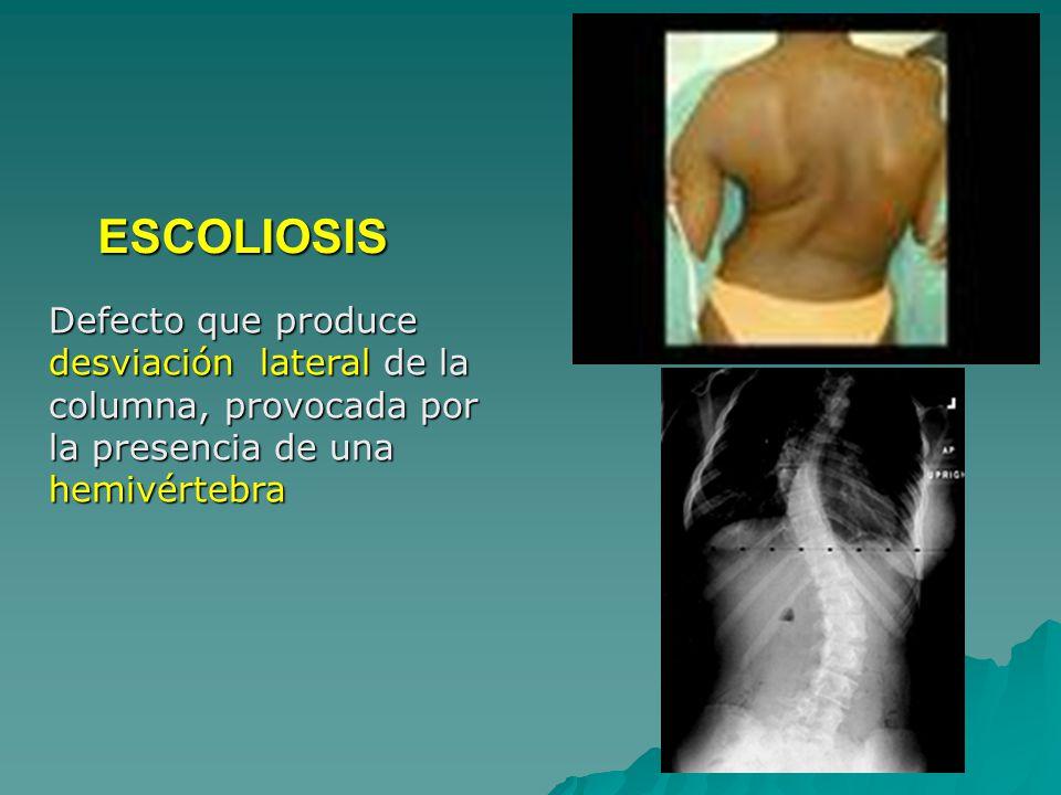 ESCOLIOSIS Defecto que produce desviación lateral de la columna, provocada por la presencia de una hemivértebra.