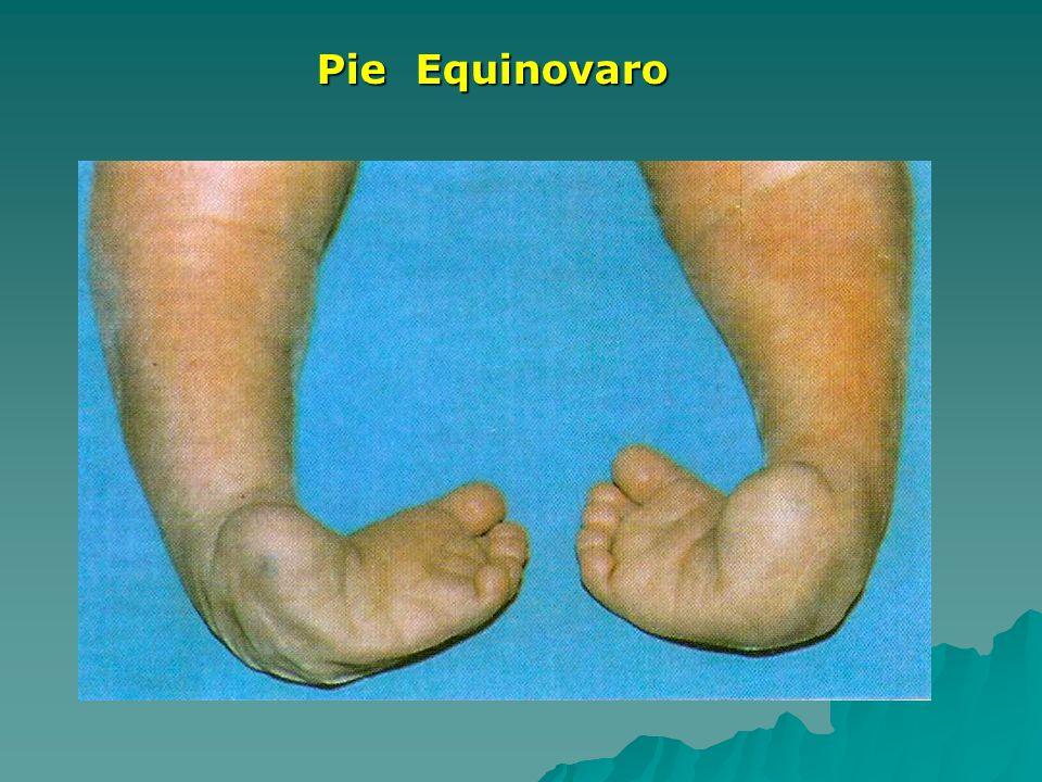 Pie Equinovaro