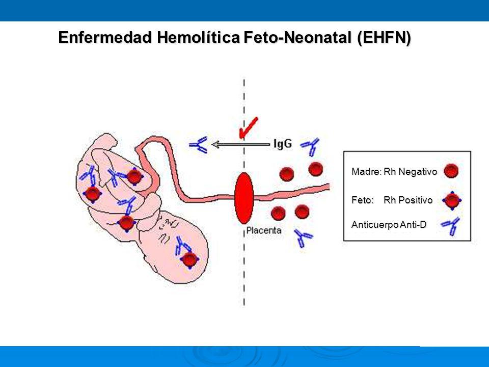 Enfermedad Hemolítica Feto-Neonatal (EHFN)