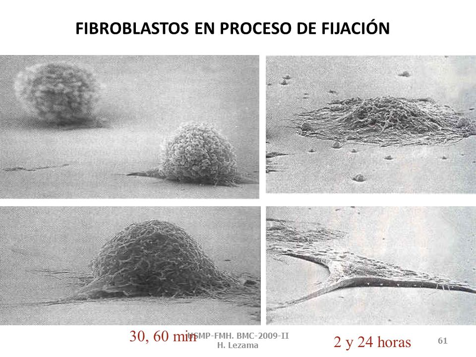 FIBROBLASTOS EN PROCESO DE FIJACIÓN