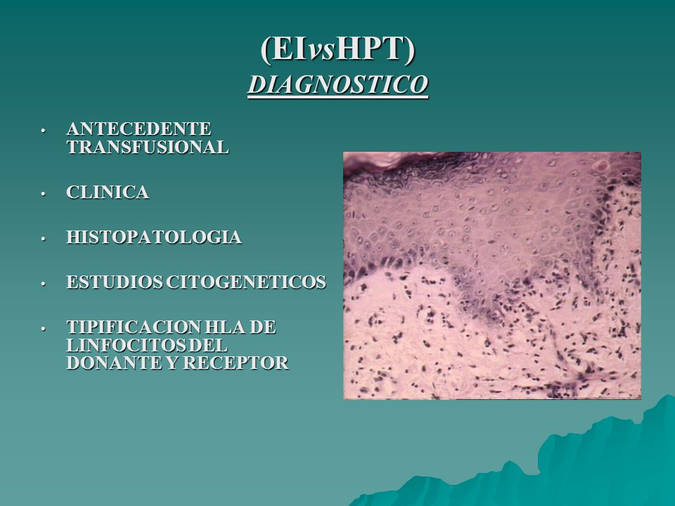 (EIvsHPT) DIAGNOSTICO