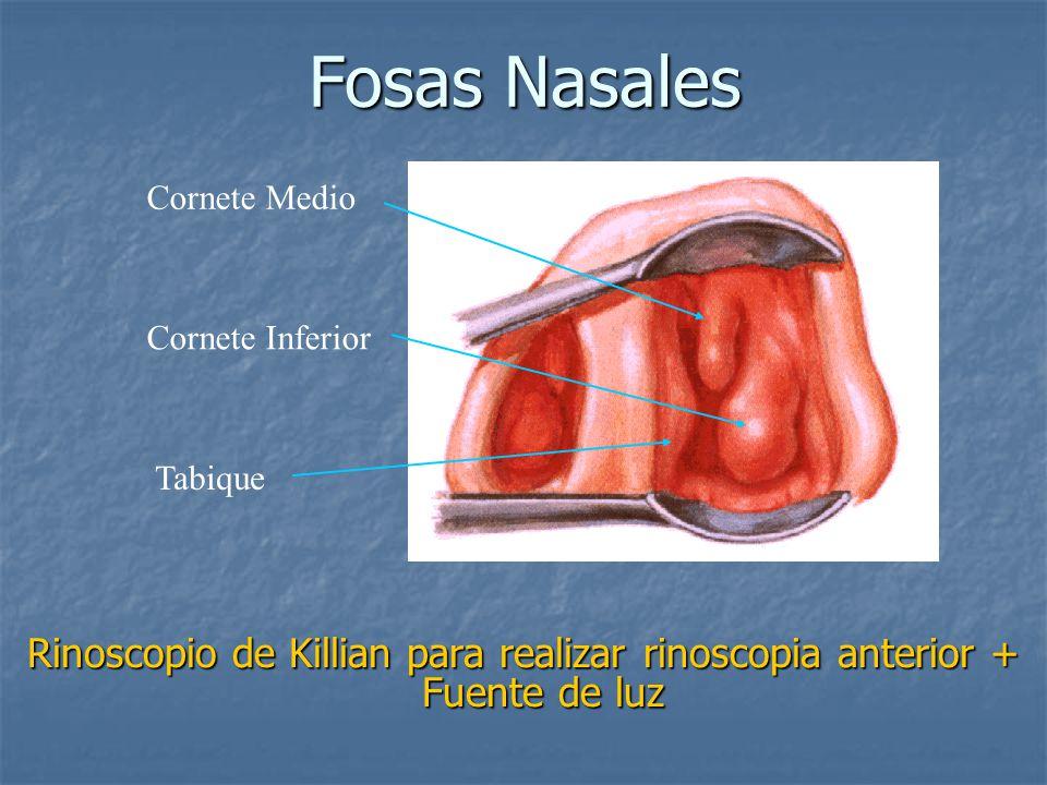Fosas Nasales Cornete Medio. Cornete Inferior. Tabique.
