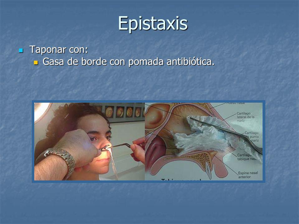 Epistaxis Taponar con: Gasa de borde con pomada antibiótica.