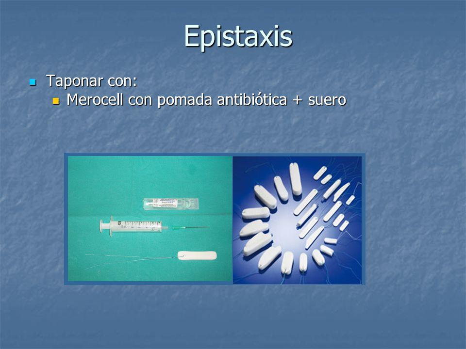 Epistaxis Taponar con: Merocell con pomada antibiótica + suero